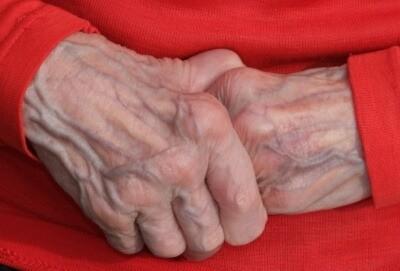 Pflegefall, Pflegeversicherung, Pflegebedürftig